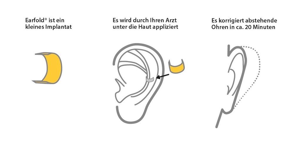 Anlegen op ohren abstehende ohne Abstehende Ohren?